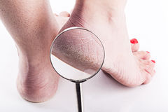 在女性脚时的被脱水的皮肤 库存照片