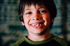 咧嘴笑的男孩缺掉牙 免版税库存图片