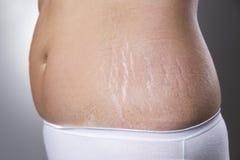 有怀孕伸展线特写镜头的女性腹部 免版税库存照片