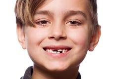 Портрет мальчика с потерянным зубом Стоковое Изображение RF