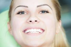 与美丽的妇女面孔的在牙医的特写镜头和微笑 免版税库存照片