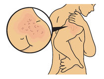 Сыпь на плече Стоковые Фотографии RF