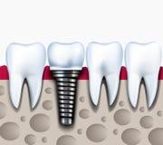 健康牙和牙插入物解剖学在下颌骨头 免版税库存图片