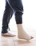 Νεαρός άνδρας με έναν σπασμένο αστράγαλο και ένα πόδι χυτούς Στοκ φωτογραφία με δικαίωμα ελεύθερης χρήσης