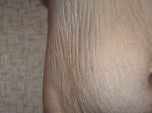 在怀孕以后的伸展线 库存图片