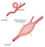动脉瘤的类型 库存图片