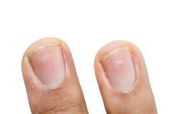 在指甲盖的白色斑点 库存照片