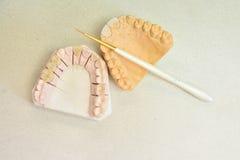 关闭牙清洁保健员 免版税库存照片