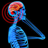 影响脑子移动电话辐射通知 库存照片
