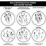 Normal and abnormal sperm stock photo