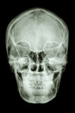 Normal asian humans skull (Thai people) Royalty Free Stock Images