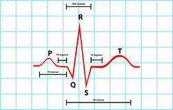 Normal Atrial And Ventricular Depolarization With stock illustration