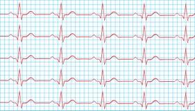 Normal bihålarytm för hjärta på elektrokardiogram Arkivfoton