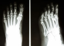 Normal bone of human's foot. Film X-ray show normal bone of human's foot royalty free stock photography