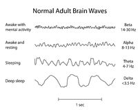 Normal Brain Waves EEG. Types of adult normal Brain Waves in EEG test Royalty Free Stock Photo