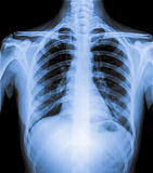Normal Chest X Ray of human. Normal Chest X Ray of patient of human body royalty free stock images