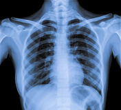 Normal Chest X Ray Royalty Free Stock Image