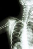 Normal childs shoulder Stock Image