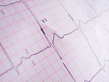 Normal ECG Royalty Free Stock Photos