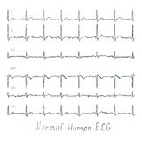 Normal ECG human illustration. Normal healthy human illustration of ECG Royalty Free Stock Images