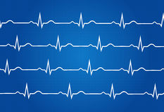 Normal Electrocardiogram Graphic Royalty Free Stock Image