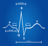Normal Electrocardiogram Graphic Royalty Free Stock Images