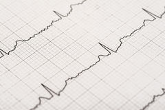 Normal Electrocardiogram Record. On Paper stock images