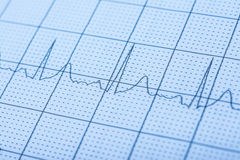 Normal Electrocardiogram Record. On Paper royalty free stock images