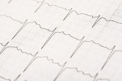 Normal Electrocardiogram Record Waves. On Paper royalty free stock images