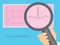 Normal electrocardiography vector illustration. ECG interpretation conceptual illustration. Looking throw magnifier into ecg strip Royalty Free Stock Images