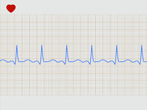 Normal electronic cardiogram. EPS 8 Stock Photos