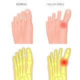 Normal foot and Hallux varus Stock Photography