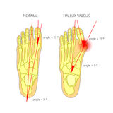 Normal foot and valgus deviation of the first toe with indicatin Royalty Free Stock Photo