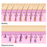 Normal hair and Alopecia areata Stock Images