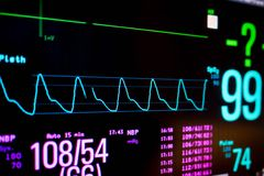 Normal heart function on pulse oximeter pleth graph bar. On monitor display and blood pressure function stock photo