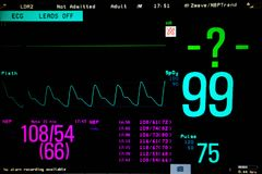 Normal heart function on pulse oximeter pleth graph bar. On monitor display and blood pressure function royalty free stock photos