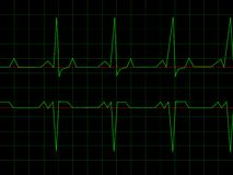 Normal Heart Rhythm. Electrocardiogram ECG graph with black background Royalty Free Stock Photo