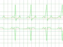 Normal Heart Rhythm. Electrocardiogram ECG graph with white background Royalty Free Illustration