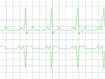 Normal Heart Rhythm vector illustration