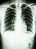 Normal human' chest. Film chest X-ray PA upright show normal human's chest stock image