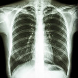 Normal human's chest Stock Photo