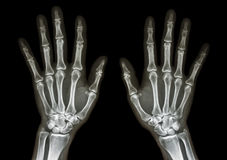 Normal human's hands Royalty Free Stock Photo