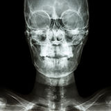 Normal human's skull Stock Photo