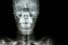 Normal human's skull and blank area at right side Stock Images