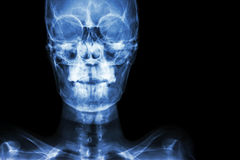 normal human's skull and blank area at right side Royalty Free Stock Photography