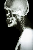 Normal human's skull and cervical spine Stock Photo