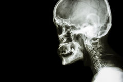 Normal human's skull and cervical spine Royalty Free Stock Images
