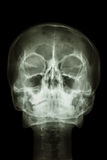 Normal human's skull and cervical spine Royalty Free Stock Photos