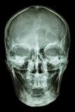 Normal human skull royalty free stock photography