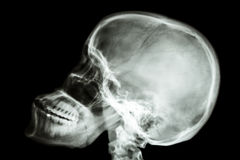 Normal humans skull and cervical spine Stock Photography